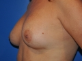 1b - After Breast Augmentation