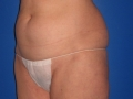 14a - Before Tummy Tuck