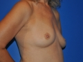 2a - Before Breast Augmentation 2