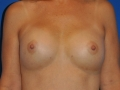 3b - After Breast Augmentation 4