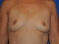 3a - Before Breast Augmentation 3