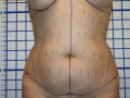 2a - Before - Tummy Tuck