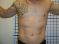 5b - After 3 months - Male 6 pack